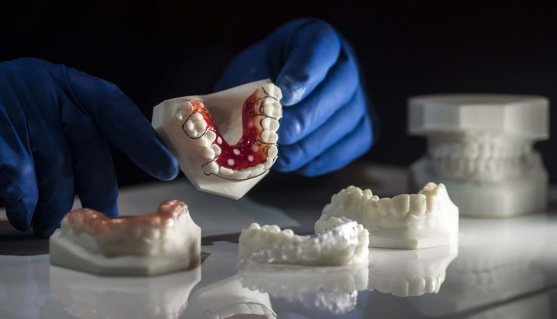 3d printing in dentristy